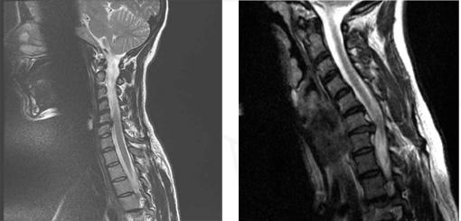 névralgies cervico brachiales symptômes