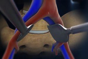 Exposition du disque intervertébral et protection des vaisseaux
