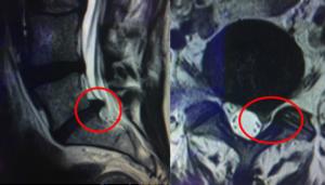 Microchirurgie d'une hernie discale par voie mini-invasive ...