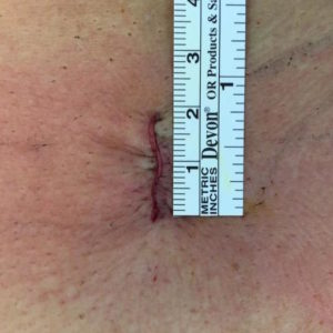 Incision Microdiscectomie 18 mm (Images Dr Rigal)